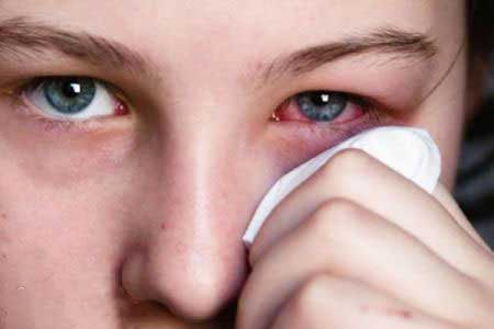 اگر به مواد آرایشی حساسیت دارید بخوانید