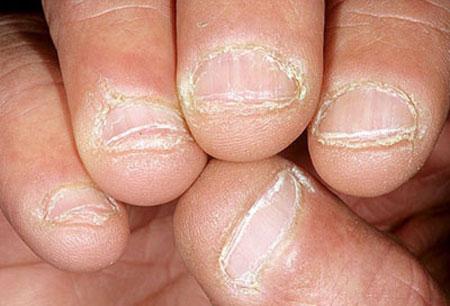 درمان خانگی ناخن های ریش ریش