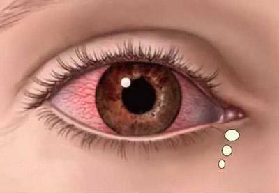 علائم و راه درمان بیماری یووئیت یا التهاب بافت یوه چشم