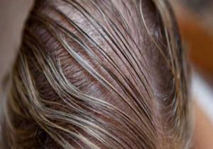 عواملی که باعث نازک تر شدن موها میشود