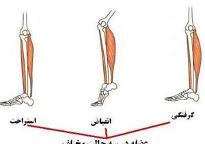 درمان خانگی برای گرفتگی عضلات
