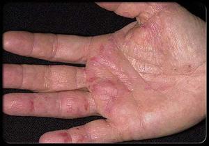 اگر دستانتان اینگونه است شما سرطان دارید!