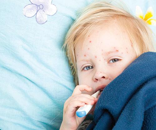 جوشهای بدن فرزندتان، خبر از بیماری میدهد!