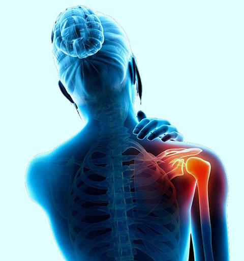 با طب سنتی درد مفاصل را به زانو درآورید