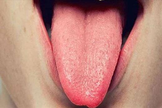 اگر رنگ زبان تان تیره بود...