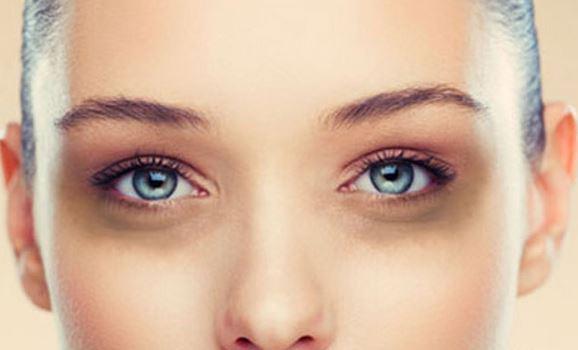 روشهای سریع برای رهایی از سیاهی و پف زیر چشم