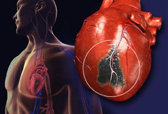 ۱۰ نشانه حمله قلبی که هرگز نباید نادیده بگیرید