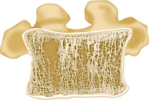 پوکی استخوان در مردان
