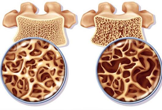 بیماری پوکی استخوان یا استئوپروز
