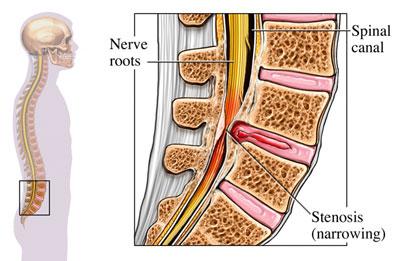 بیماری تنگی کانال نخاعی علل و درمان
