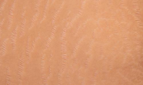 پوست خانم باردار چه تغییراتی می کند؟