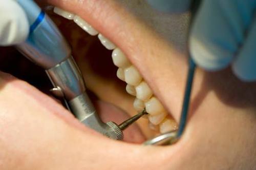 دلیل درد فردای دندانپزشکی چیست؟